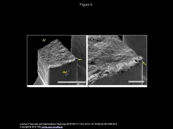 Figure 6 Journal of Vascular and Interventional Radiology 2015 26111 -115. e 1 DOI: