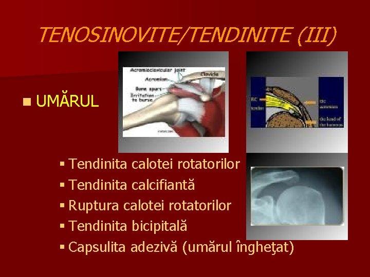aderențe în tratamentul articulațiilor umărului durere cu presiune pe genunchi