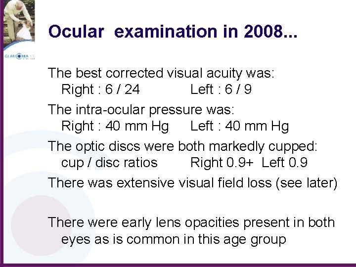 Ocular examination in 2008. . . The best corrected visual acuity was: Right :