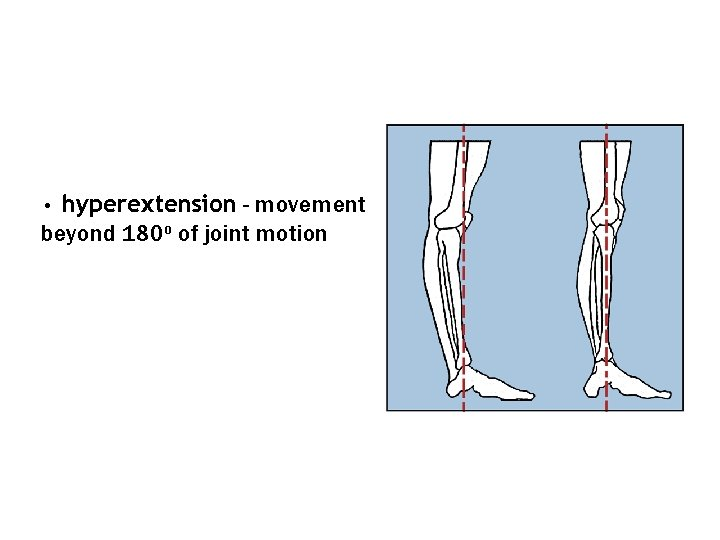 hyperextension - movement beyond 180 o of joint motion •