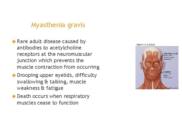 Myasthenia gravis Rare adult disease caused by antibodies to acetylcholine receptors at the neuromuscular