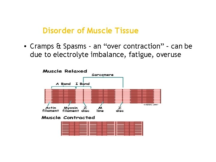 """Disorder of Muscle Tissue • Cramps & Spasms - an """"over contraction"""" – can"""
