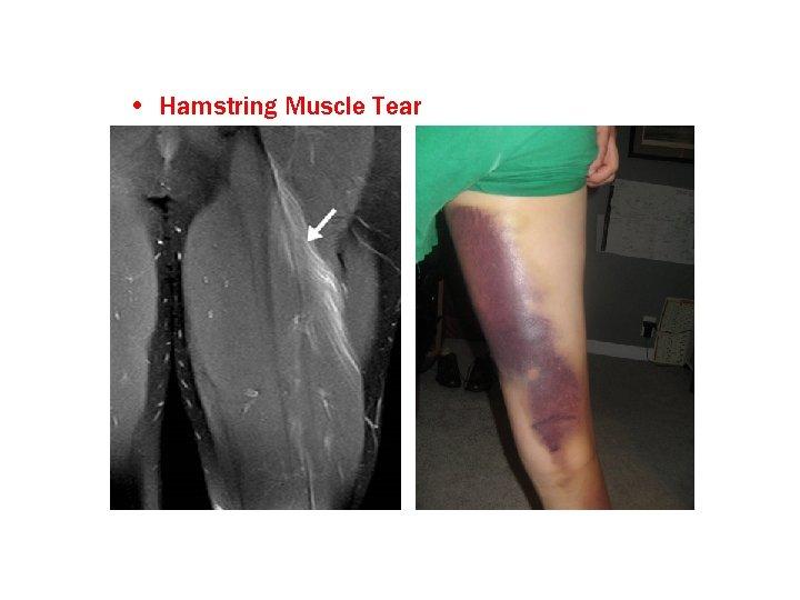 • Hamstring Muscle Tear