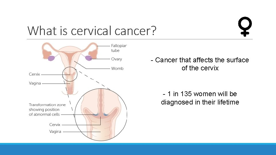 What is cervical cancer? - Cancer that affects the surface of the cervix -