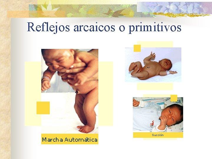 Reflejos arcaicos o primitivos