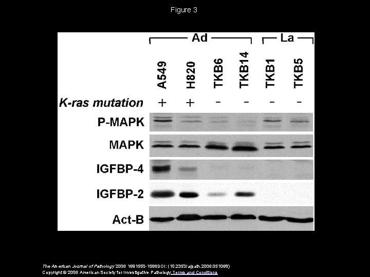 Figure 3 The American Journal of Pathology 2006 1691550 -1566 DOI: (10. 2353/ajpath. 2006.