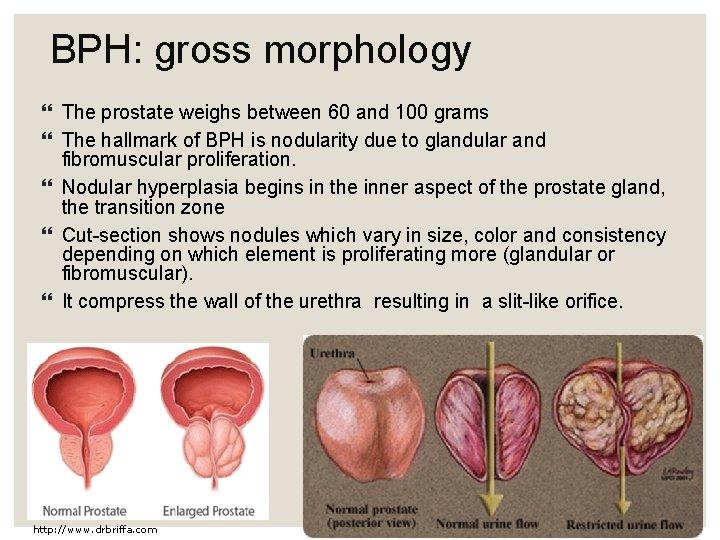 normal prostate volume in grams