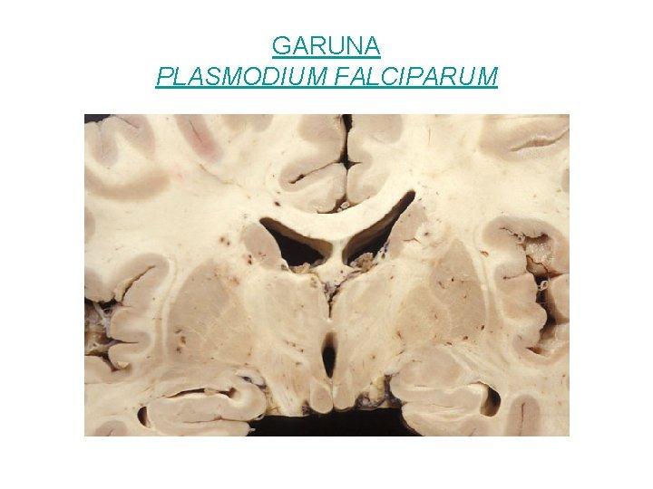 GARUNA PLASMODIUM FALCIPARUM