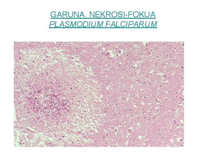 GARUNA. NEKROSI-FOKUA PLASMODIUM FALCIPARUM