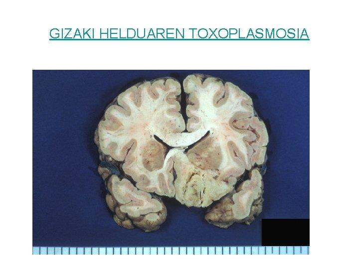 GIZAKI HELDUAREN TOXOPLASMOSIA