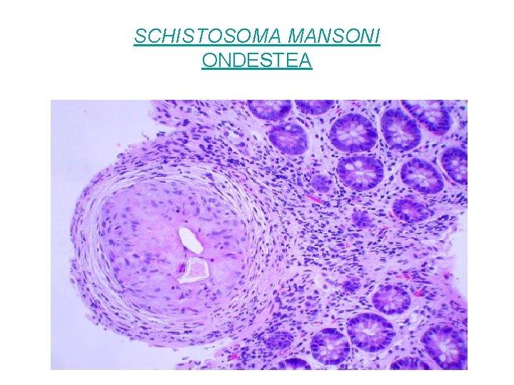 SCHISTOSOMA MANSONI ONDESTEA