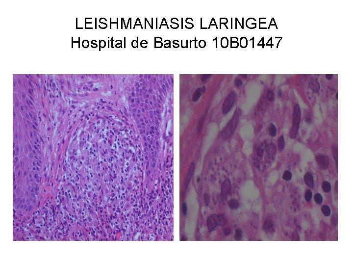 LEISHMANIASIS LARINGEA Hospital de Basurto 10 B 01447