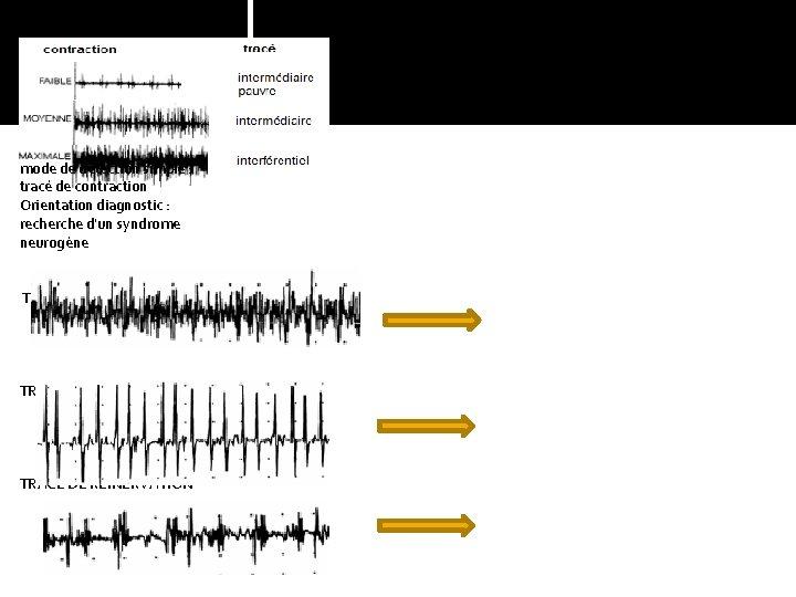 RESULTATS ENMG mode de détection simple : tracé de contraction Orientation diagnostic : recherche