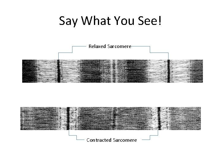 Say What You See! Relaxed Sarcomere Contracted Sarcomere