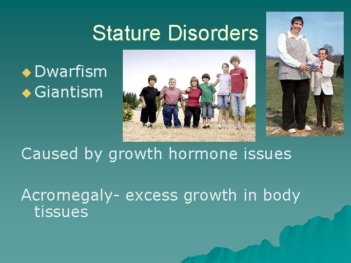 Stature Disorders u Dwarfism u Giantism Caused by growth hormone issues Acromegaly- excess growth