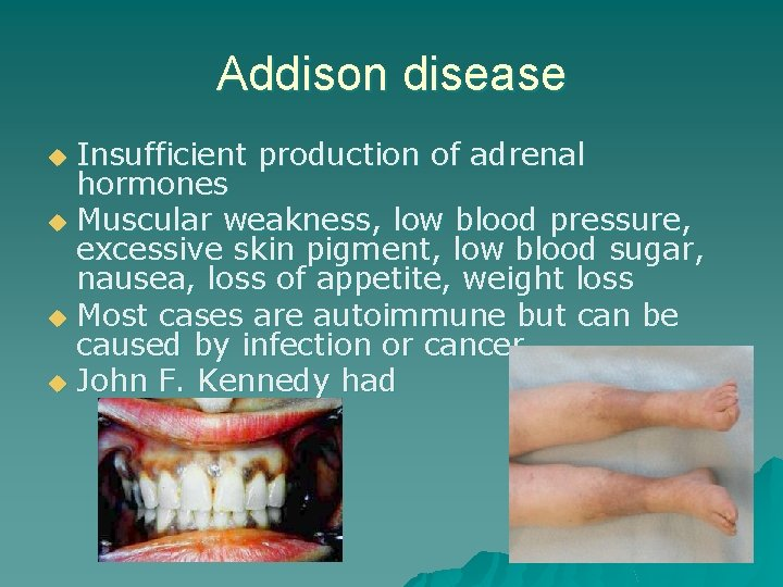 Addison disease Insufficient production of adrenal hormones u Muscular weakness, low blood pressure, excessive
