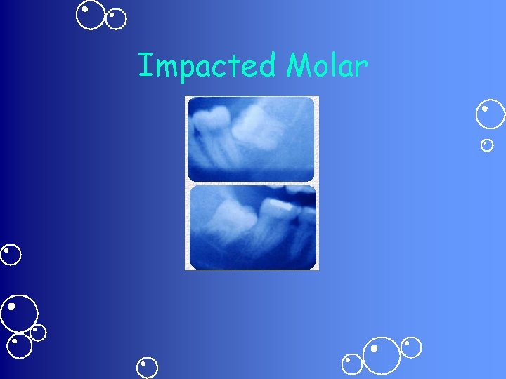 Impacted Molar