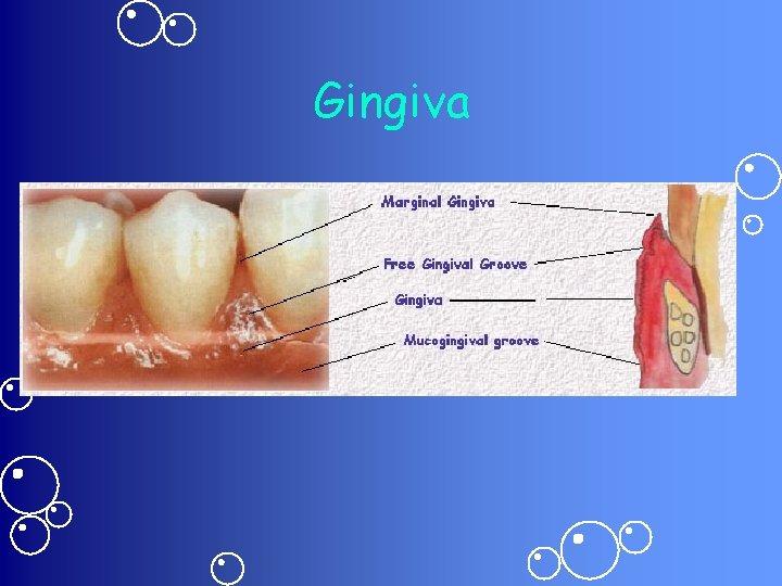 Gingiva