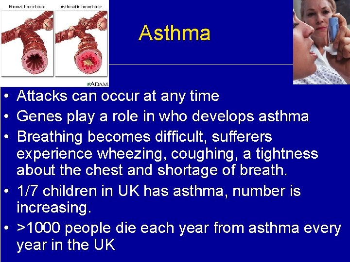 Asthma • Attacks can occur at any time • Genes play a role in