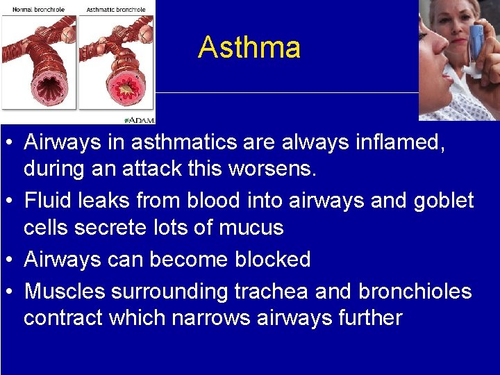Asthma • Airways in asthmatics are always inflamed, during an attack this worsens. •