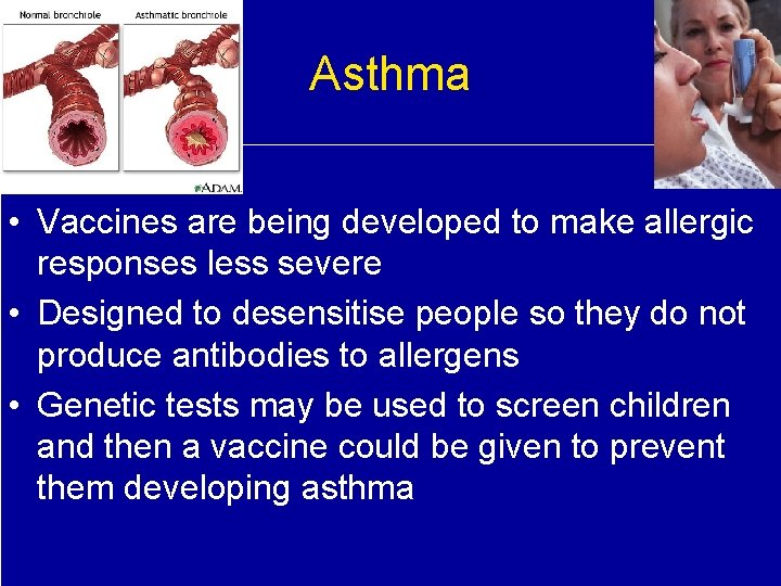 Asthma • Vaccines are being developed to make allergic responses less severe • Designed