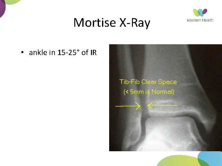 Mortise X-Ray • ankle in 15 -25° of IR