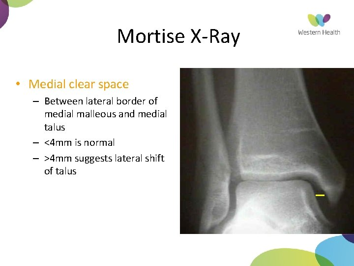 Mortise X-Ray • Medial clear space – Between lateral border of medial malleous and