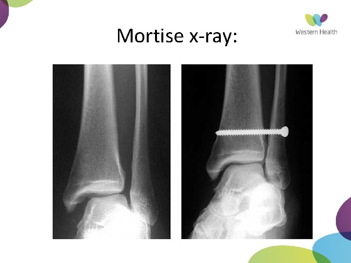 Mortise x-ray: