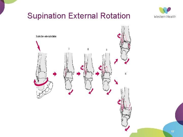 Supination External Rotation 17