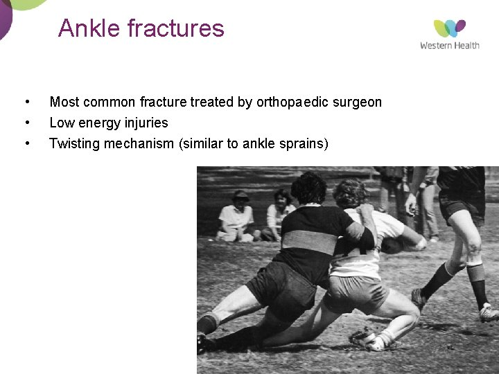 Ankle fractures • • • Most common fracture treated by orthopaedic surgeon Low energy