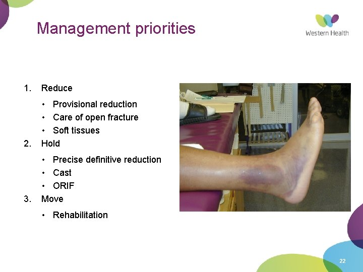 Management priorities 1. Reduce 2. • Provisional reduction • Care of open fracture •