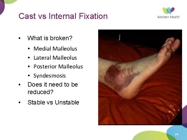 Cast vs Internal Fixation • • • What is broken? • Medial Malleolus •