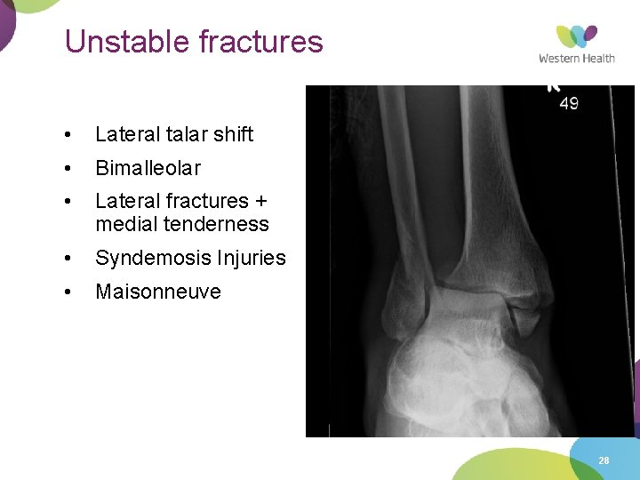 Unstable fractures • Lateral talar shift • Bimalleolar • Lateral fractures + medial tenderness