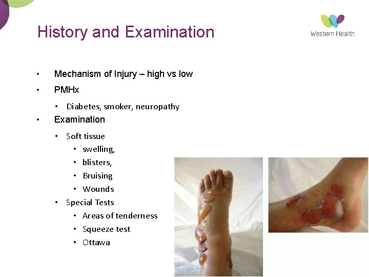 History and Examination • Mechanism of Injury – high vs low • PMHx •