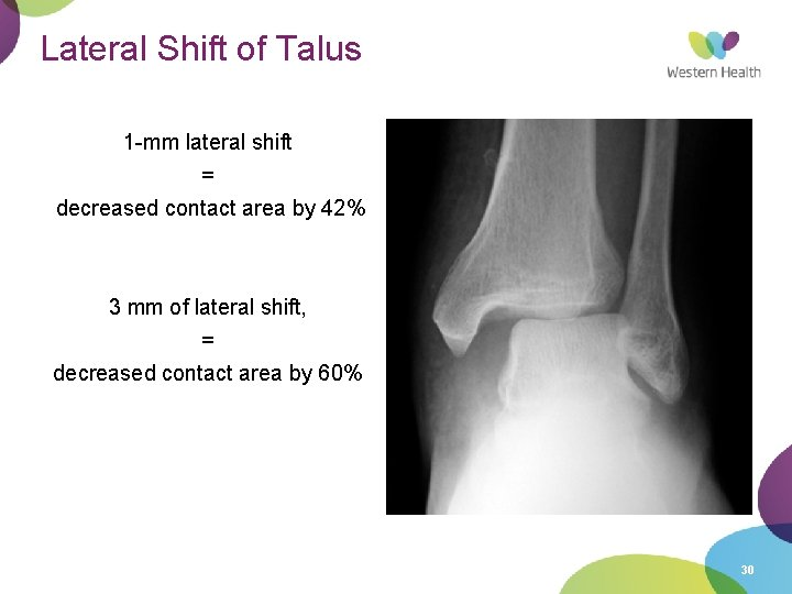 Lateral Shift of Talus 1 -mm lateral shift = decreased contact area by 42%