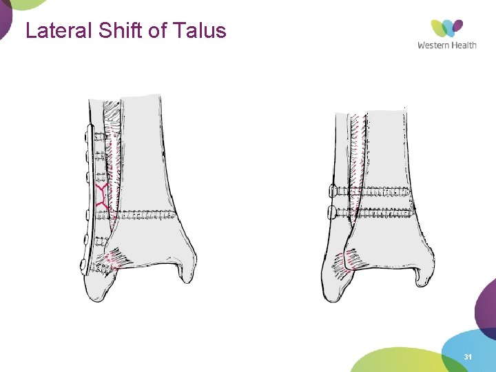 Lateral Shift of Talus 31