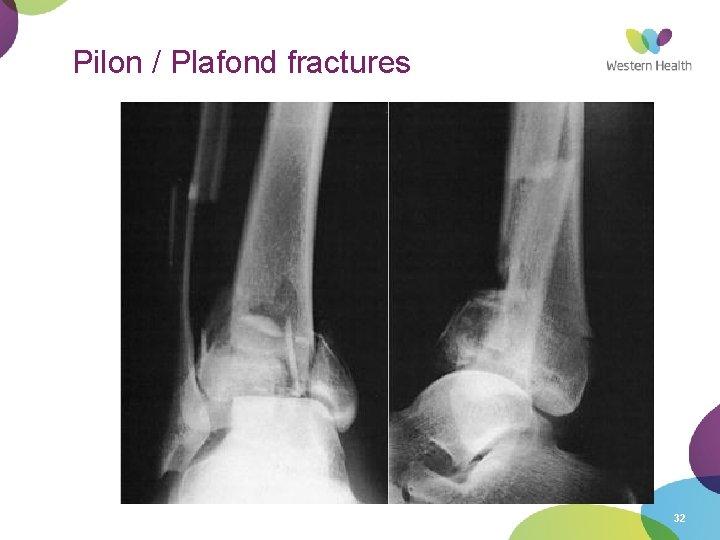 Pilon / Plafond fractures 32