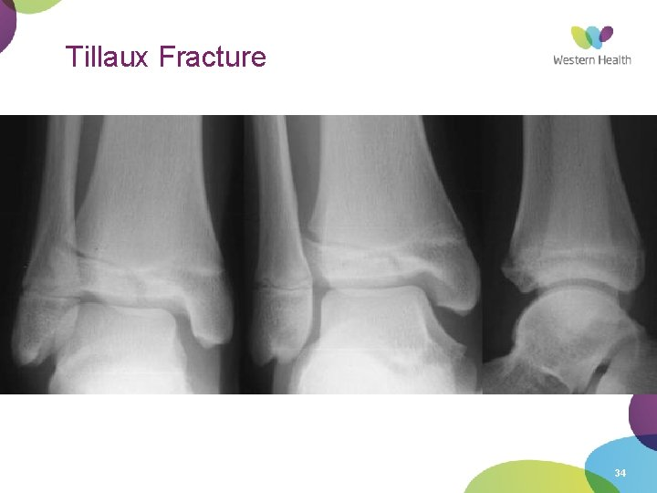 Tillaux Fracture • Occurs in 12 -14 year olds 18 month period when epiphysis