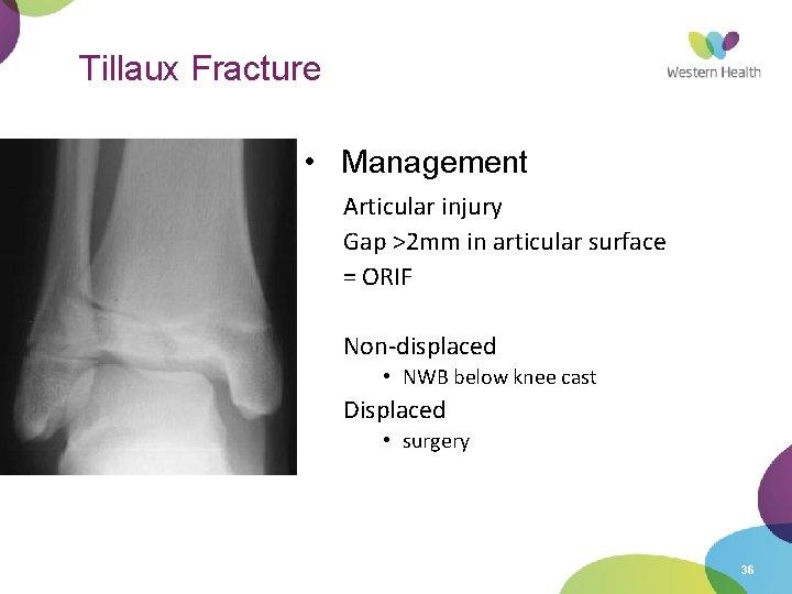Tillaux Fracture • Management Articular injury Gap >2 mm in articular surface = ORIF