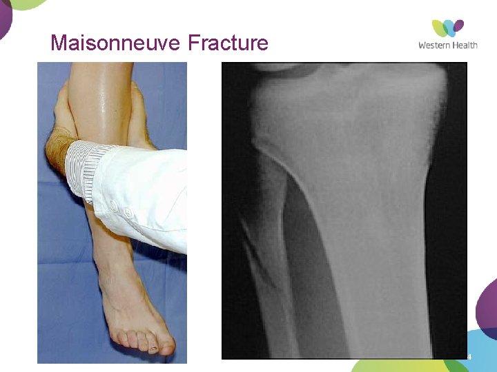 Maisonneuve Fracture 4