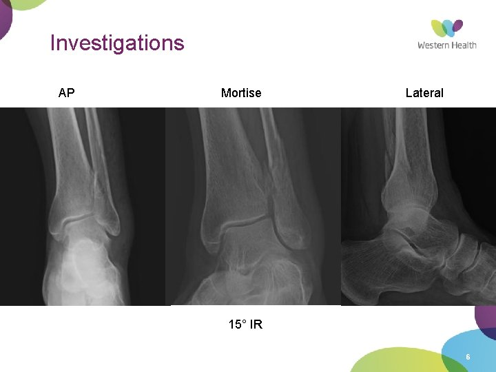 Investigations AP Mortise Lateral 15° IR 6