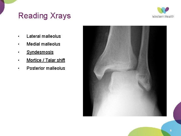 Reading Xrays • Lateral malleolus • Medial malleolus • Syndesmosis • Mortice / Talar