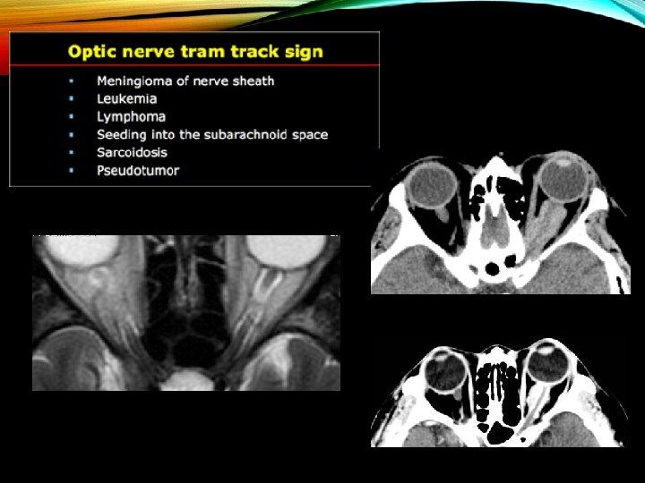 meningioma és látás
