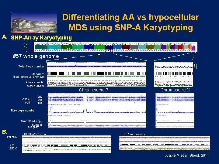 Differentiating AA vs hypocellular MDS using SNP-A Karyotyping A. SNP-Array Karyotyping 3 N 2