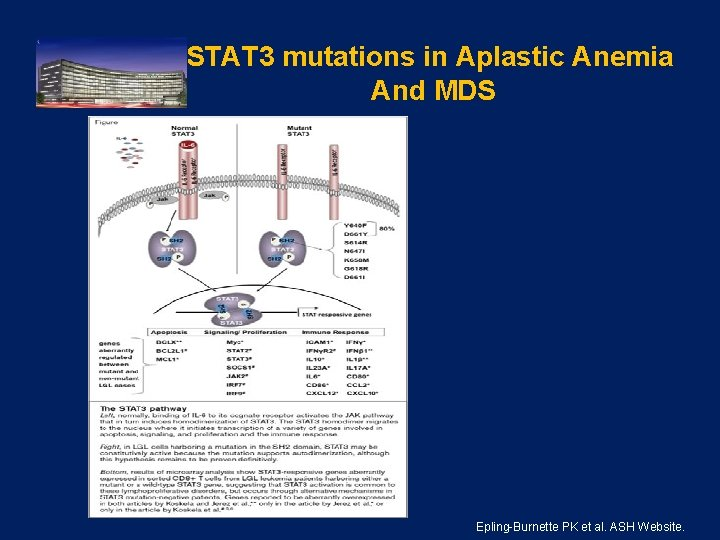 STAT 3 mutations in Aplastic Anemia And MDS . Epling-Burnette PK et al. ASH