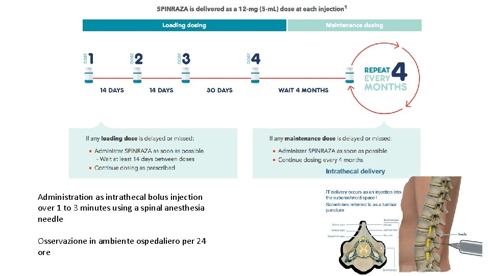 Administration as intrathecal bolus injection over 1 to 3 minutes using a spinal anesthesia