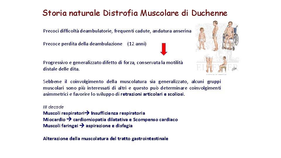 Storia naturale Distrofia Muscolare di Duchenne Precoci difficoltà deambulatorie, frequenti cadute, andatura anserina Precoce