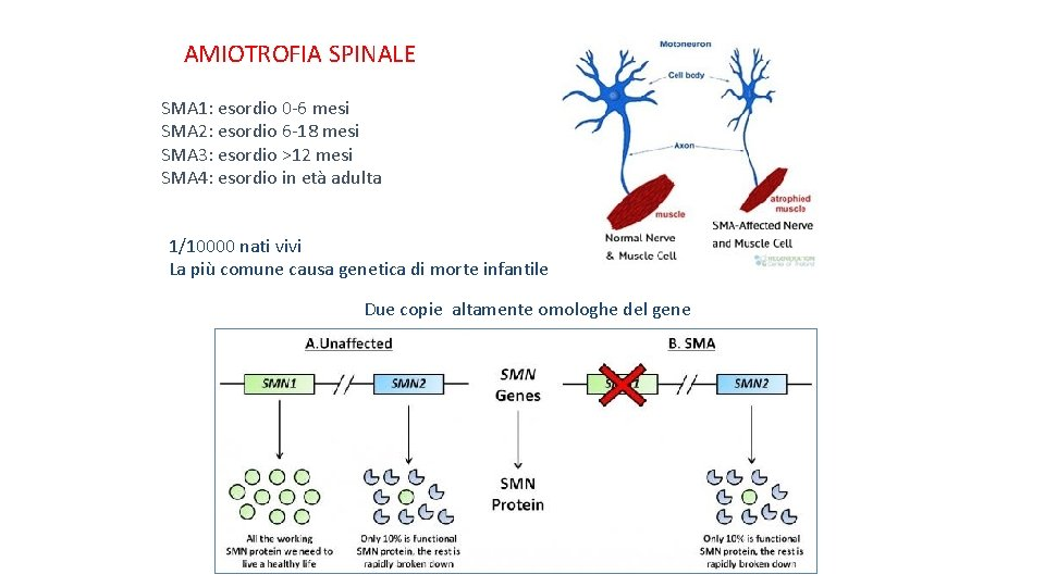 AMIOTROFIA SPINALE SMA 1: esordio 0 -6 mesi SMA 2: esordio 6 -18 mesi