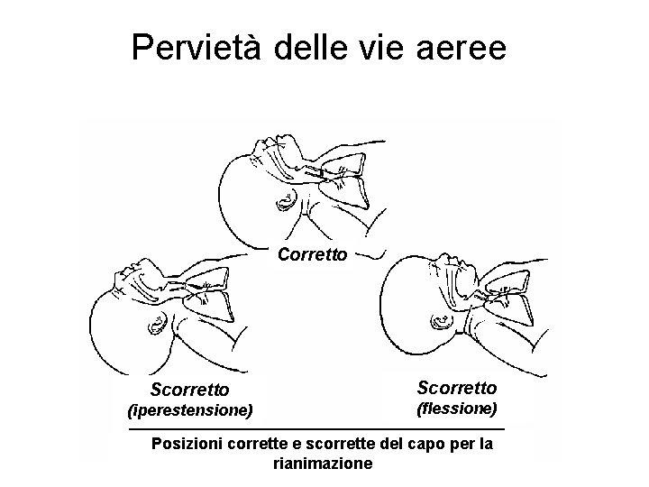 Pervietà delle vie aeree Corretto Scorretto (iperestensione) Scorretto (flessione) Posizioni corrette e scorrette del