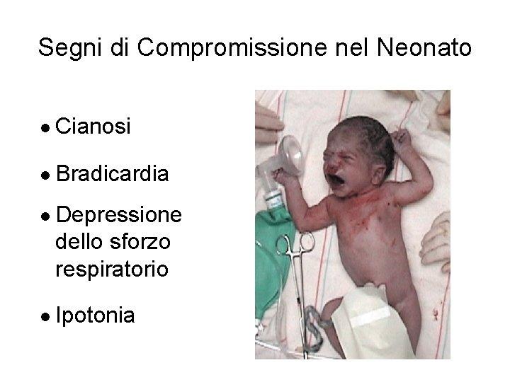 Segni di Compromissione nel Neonato l Cianosi l Bradicardia l Depressione dello sforzo respiratorio